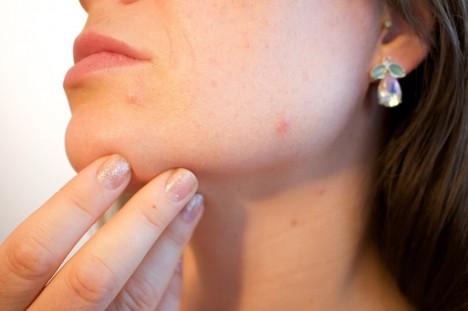 pikkelysömör tenyerek könyök kezelése szárítja a bőrt és a vörös foltokat